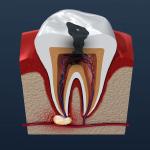口臭対策・歯周病治療